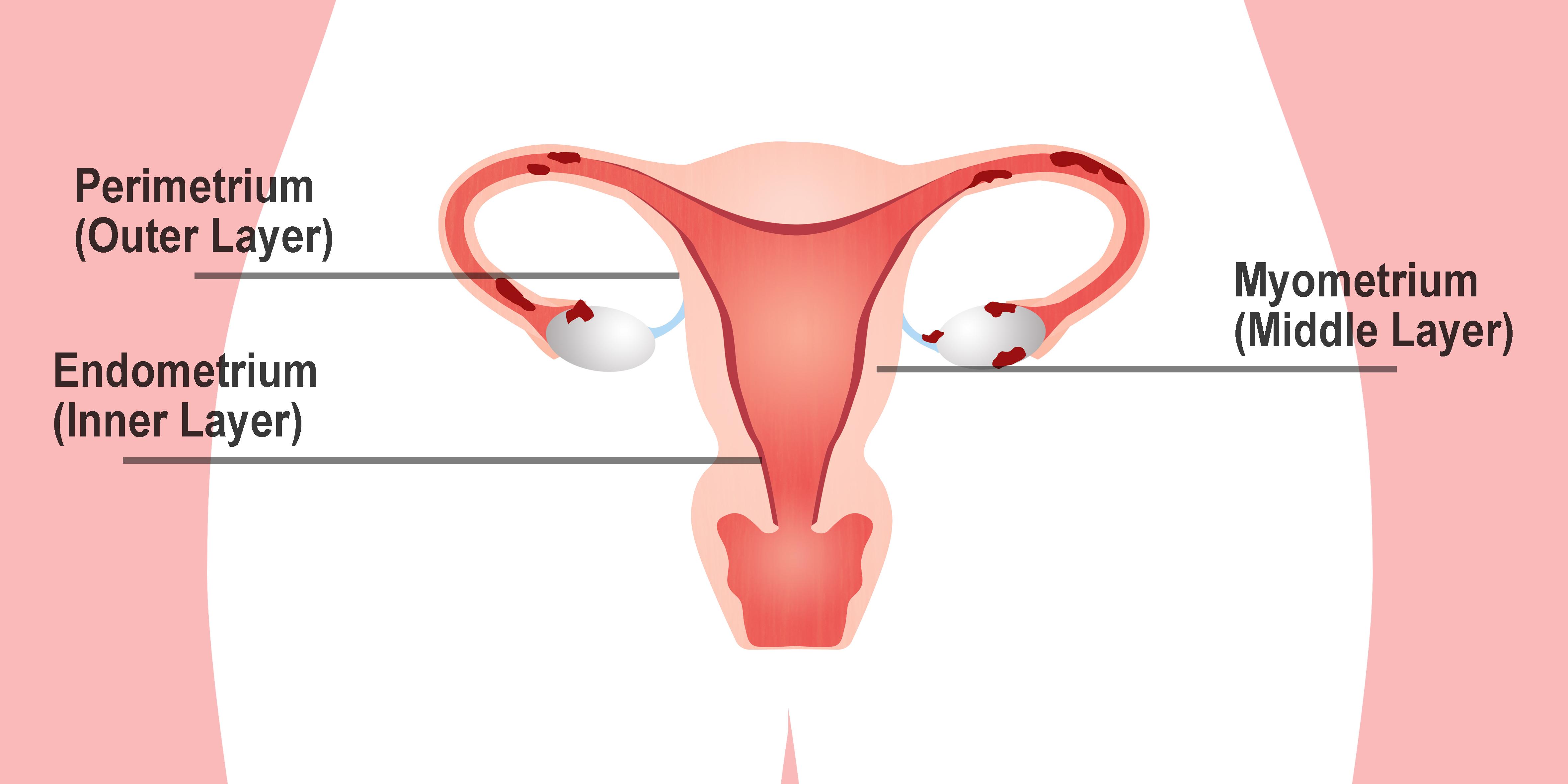 Endometriosis Layers - Permetrium, Endometrium and Myometrium