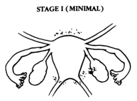 Endometriosis Stage I