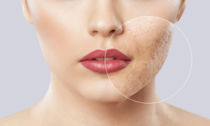 PCOS Acne Treatment